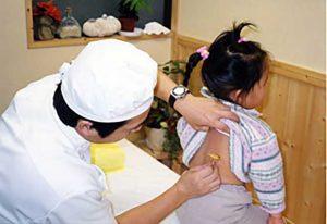 Tratamento-com-acupuntura-infantiljpg